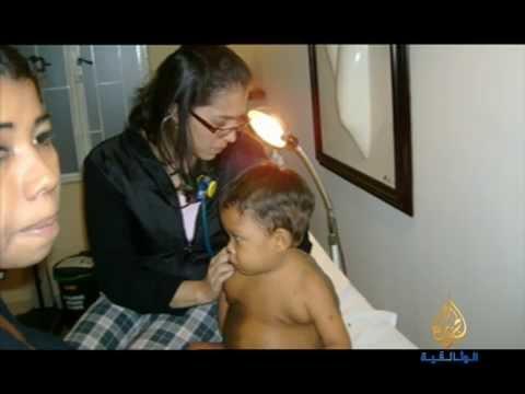 """الولد السلحفاة""""الولد السلحفاة"""" قصة غير عادية لصبي من كولومبيا!"""