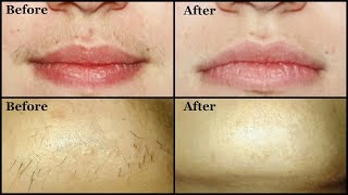 Remove UNWANTED UPPER LIP HAIR & CHIN HAIR By Yourself Easily At Home | Mamtha Nair