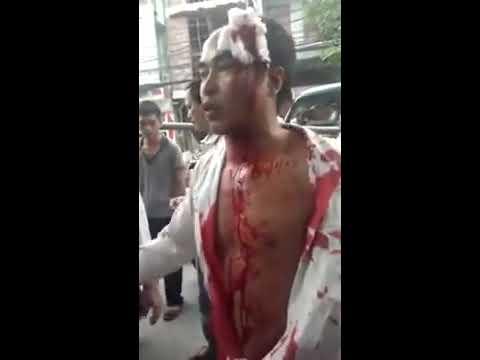 [Uông Bí] Hành khách bị đánh dã man vì xô xát với nhà xe