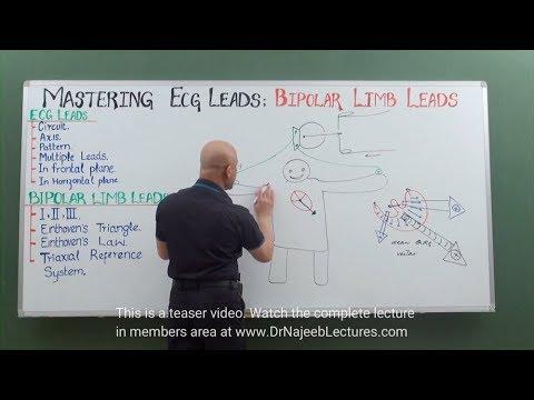 EKG – Bipolar Limb Leads