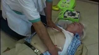 Www.fpc-online.com: Vidéo FSA Défibrillateur