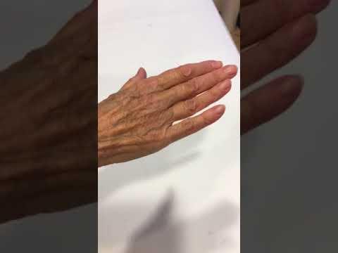 Trattamento Kavminvody di ernia spinale