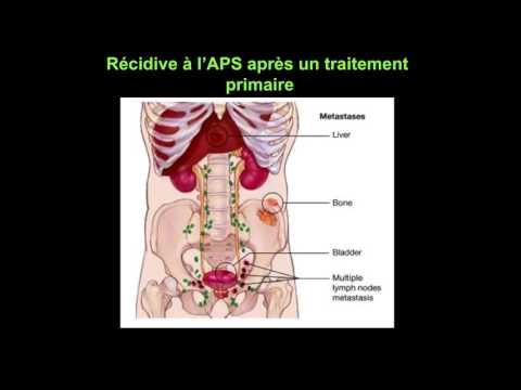 Dispositif pour le traitement de la présure adénome de la prostate