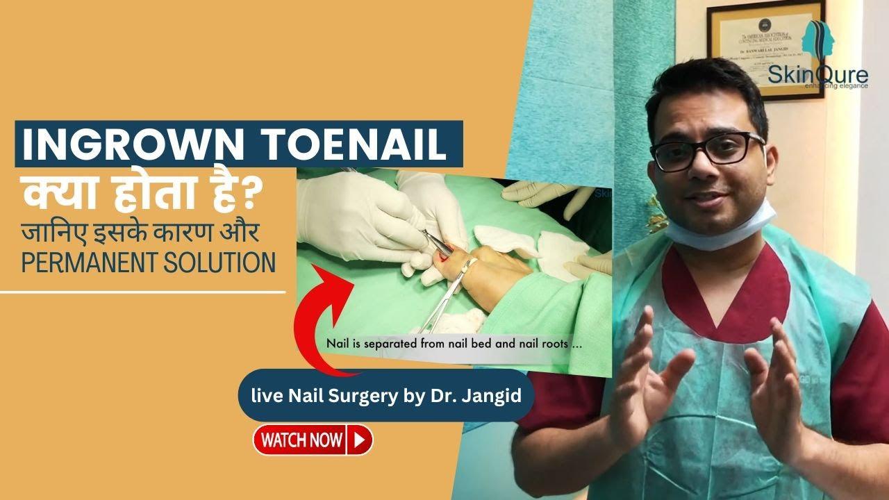 Nail surgery for Inrgown Toe Nail , Best Nail Surgery, No Bleeding