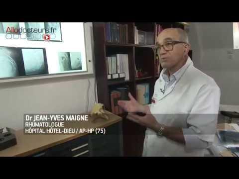 Kiefergelenkarthritis Salbe