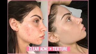 Textured Acne Clarifying Facial On @Nazanin Kavari | Jadeywadey180