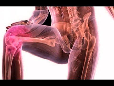 Болят суставы рук и ног что делать ! Как лечить боли в суставах - №15 Артрит. Артроз/ed black