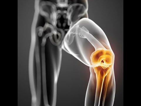 A vállízület károsodása rheumatoid arthritisben