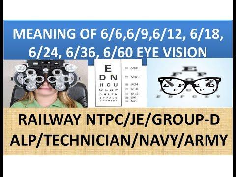 Scuturarea afectează vederea