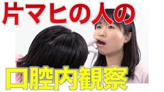 片マヒの人の口腔内観察での注意点
