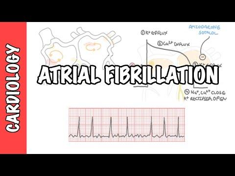 Migotanie przedsionków przegląd - EKG, typy, patofizjologia, leczenie, komplikacje