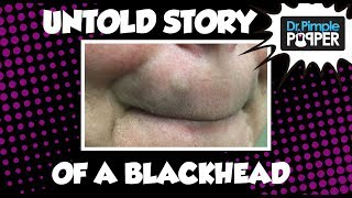 The UNTOLD story of the Button Blackhead