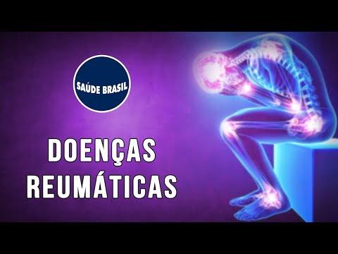Gonartroza tratamentului simptomelor articulației genunchiului