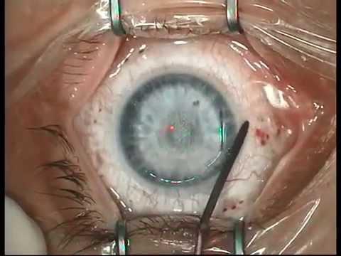 Коррекция зрения массаж