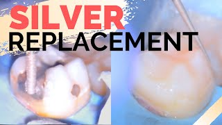 Amalgam Fillings Removal w/ Rubberdam   Replacing Dental Silver Fillings with Composite Resin