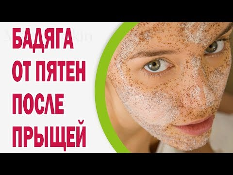 Московский район казань веснушки