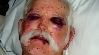 Attacked By 2000 Bees - Bizarre ER
