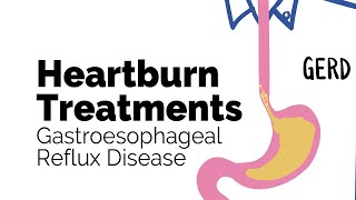 Treatments for Heartburn | Gastroesophageal Reflux Disease (GERD) | Gastrointestinal Society