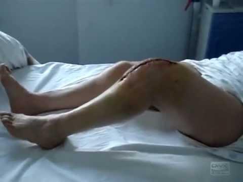 Massaggi a osteocondrosi dellaorta toracica