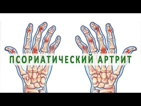 Что нужно знать о псориатическом артрите
