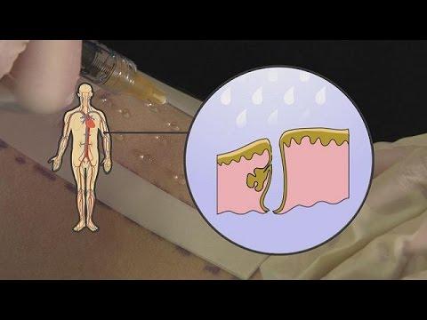 Come alleviare il dolore nel giunto sul alluce