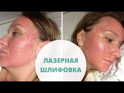 Отбеливание кожи саратов