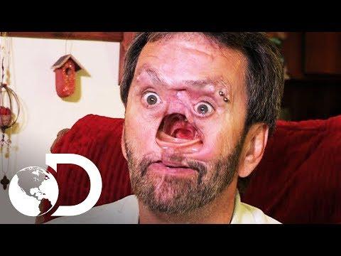 El Hombre con un hueco en el rostro | Mi Cuerpo, Mi Desafío l Discovery Latinoamérica