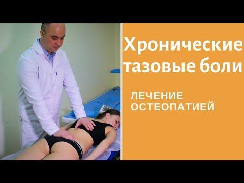 Синдром хронической тазовой боли. Хронические тазовые боли причины. Лечение остеопатией