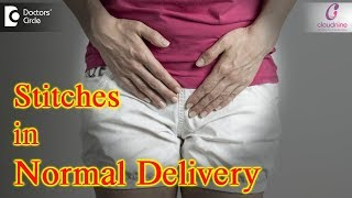 Why are stitches placed after Normal Delivery? Healing Tips after Episiotomy - Dr. Shashikala Hande
