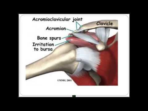 Артроз коленного сустава рентгенотерапия