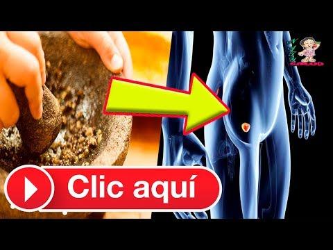 Massaggio prostatico esercitazione il video