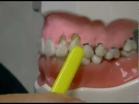 Video What Causes Gum Recession and How To Treat It