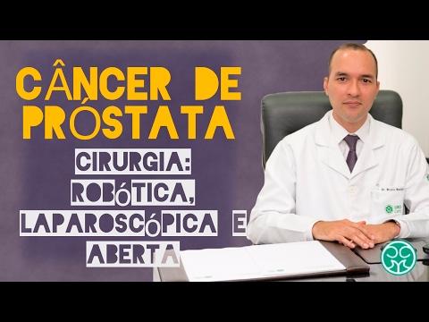 Cisto da glândula da próstata