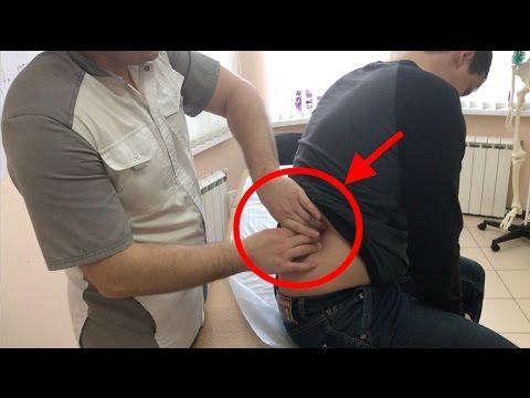 Сильные боли в шее отдающие в лопатку