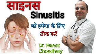 Sinus |sinusitis| साइनस ।झुकाम ।ऐलर्जी
