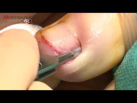 La thrombose des membres inférieurs et la veine iliaque