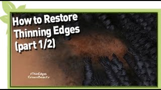 How To Restore Thinning Edges (Part 1/2) | NATURAL HAIR