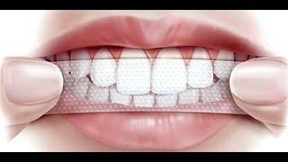 Как зубными полосками отбелить зубы
