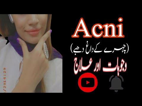 Face pa acni ka treatment||abeha abeha||