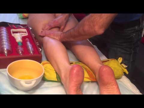 Как убрать варикозное расширение вен, целлюлит и отеки на ногах!