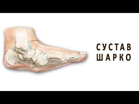 Сустав Шарко, или диабетическая остеоартропатия