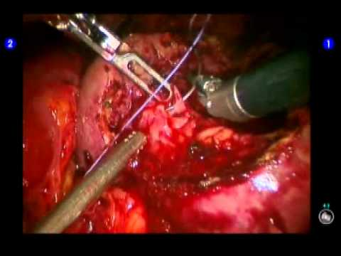 Partial Nephrectomy In Robot Assistance