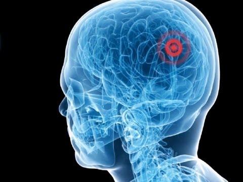 Prostata Stimulation Artikel