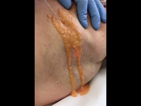 Palestra osteochondrosis cervicale