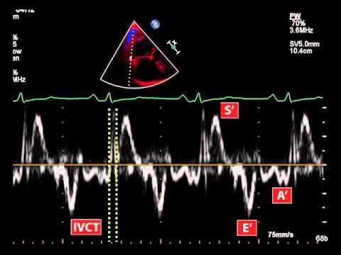 Was ist der optimale Blutdruck