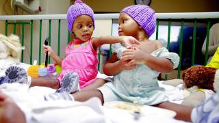 Conjoined Twins: Recovery