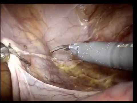 Il miglior unguento per reparto cervicale