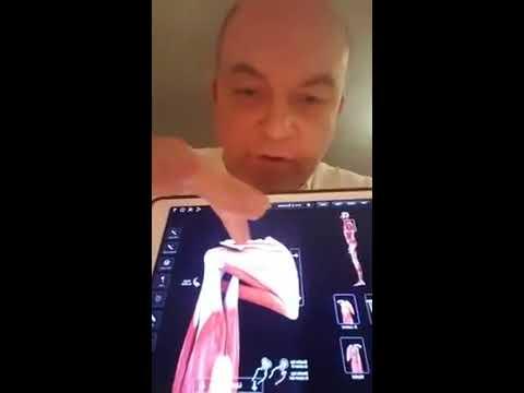 Wie eine Kniegelenksarthrosen entfernen