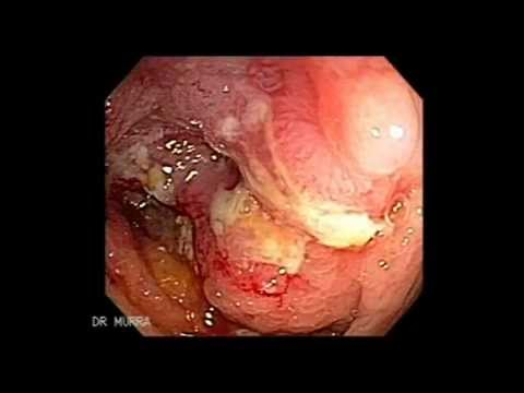 F colorectal cancer