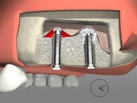 La operación al pecho no el silicón